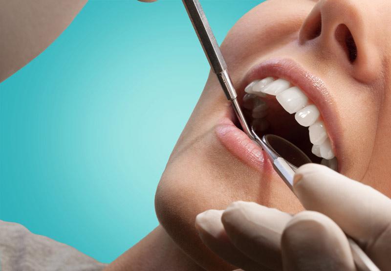 Chirurgia Orale dello studio dentisico smile gallery