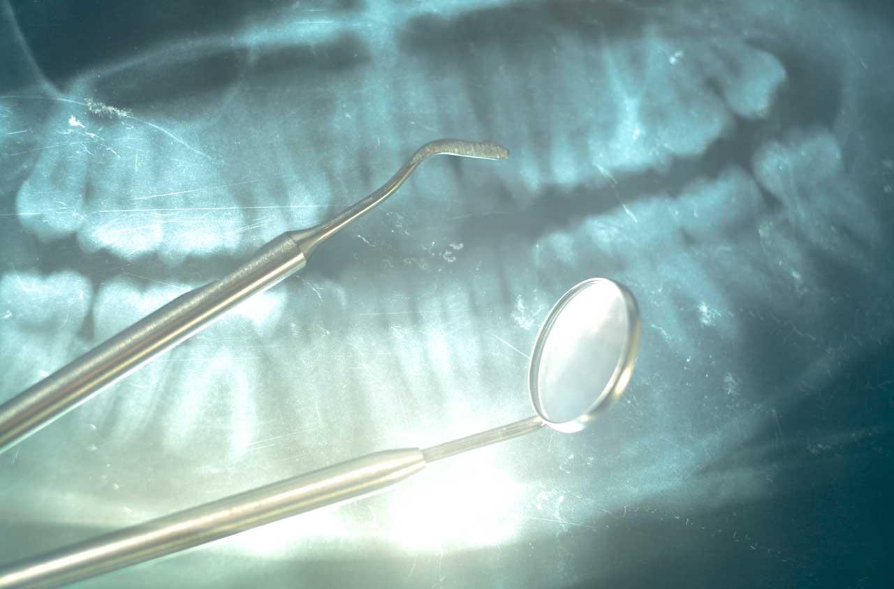 parodontologia nello studio dentistico smile gallery