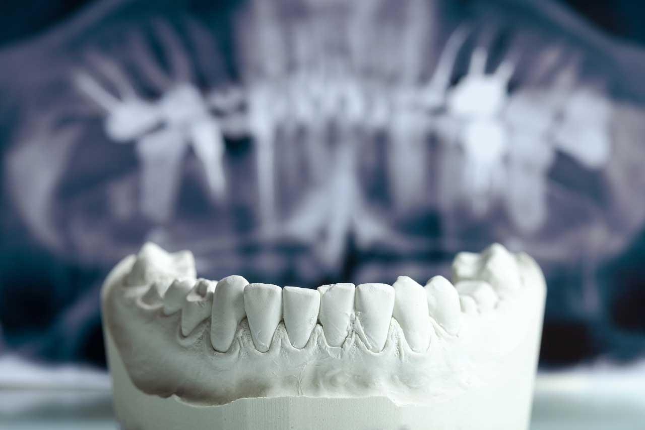 Protesi dentarie a Verona | Smile Gallery