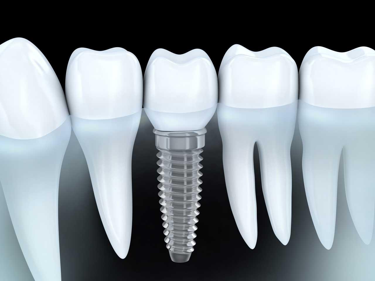 implantologia dello studio dentistico smile gallery