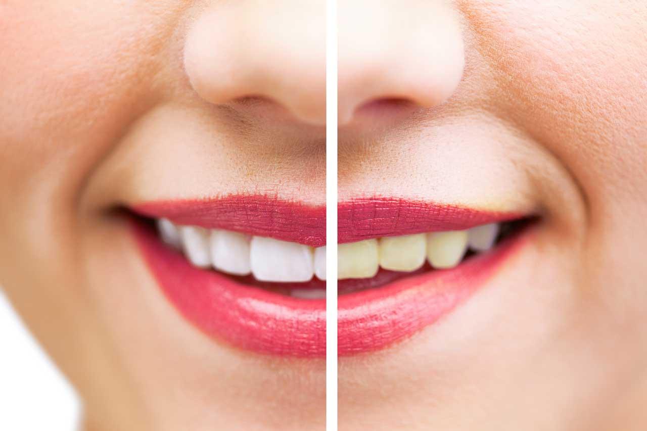 Sbiancamento denti a Verona | Smile Gallery