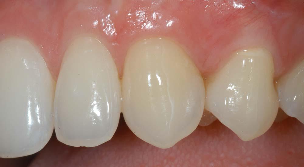 Parodontologia Verona | Centro Odontoiatrico Smile Gallery
