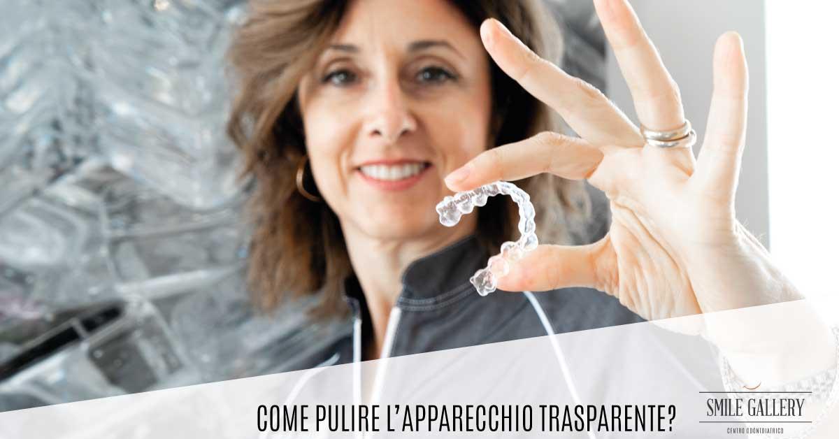 Come pulire l'apparecchio trasparente? | Smile Gallery