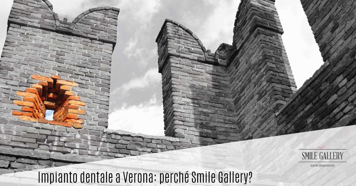 Impianto dentale a Verona: perché Smile Gallery | Dentista a Verona