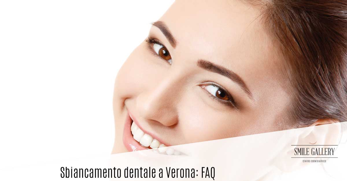 sbiancamento dentale a Verona | Smile Gallery