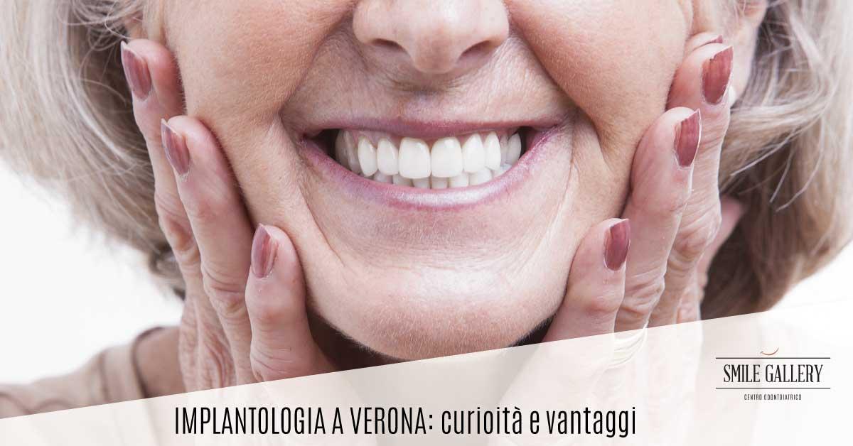 Implantologia a Verona | Dentista a Verona | Smile Gallery