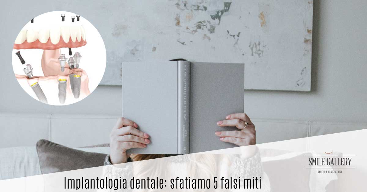 Implantologia dentale | Smile Gallery | Dentista a Verona