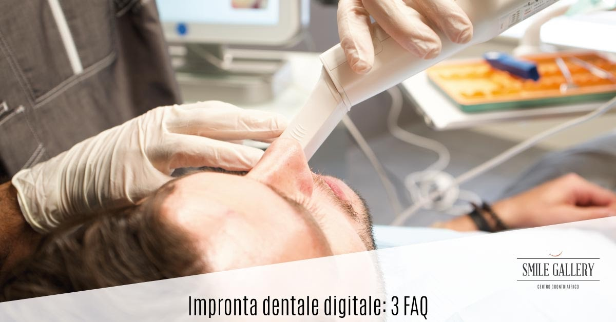 Impronta dentale digitale | Smile Gallery | Dentista a Verona
